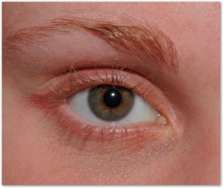 Темные круги вокруг глаз — как с ними бороться?